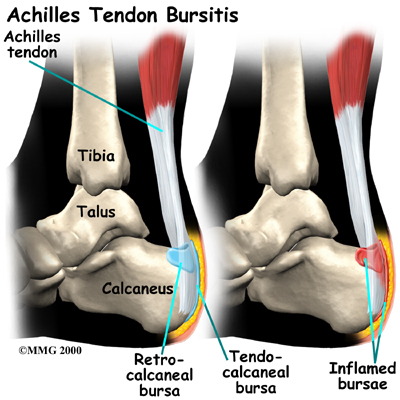 tendon Aquiles | Dr Pablo Codesido