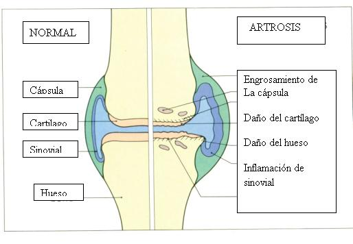 traumatología   Dr Pablo Codesido