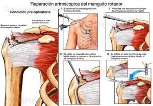 manguito-rotador-cirugia-guadalajara